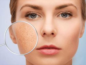 Áp dụng 1 trong 8 cách se khít lỗ chân lông da mặt vừa đơn giản vừa lành dưới đây, các nàng sẽ trở thành