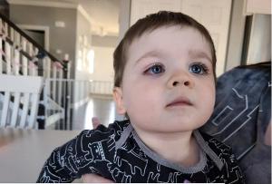 Bé trai mắt đỏ như máu, suýt mù vì thứ nhiều cha mẹ cho con dùng khi tắm