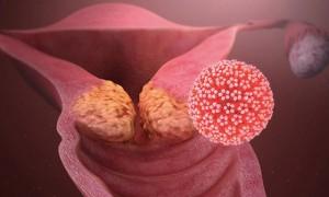 1 vạn người/ngày bị ung thư