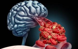Khi mạch máu não bị tắc nghẽn, sẽ có 4 biểu hiện này ở bàn chân, chú ý để phòng tránh đ.ột qu.ỵ bất ngờ