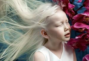 9 em bé nổi tiếng khắp thế giới vì quá đỗi đặc biệt: Từ 'người sói', cô bé tóc hai màu đến 'công chúa tuyết' đẹp như bước ra từ cổ tích