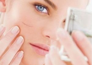 Tác hại khi dùng kem trị sẹo giả, kém chất lượng