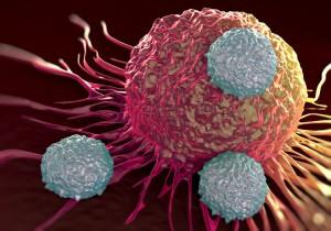 1/6 bệnh nhân mắc u.ng th.ư là do viêm: Nếu thấy cơ thể có 3 bộ phận này bị viêm, bạn nên đến viện khám ung thư khẩn cấp