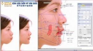 Những điều cần biết để tránh biến chứng khi độn cằm V Line