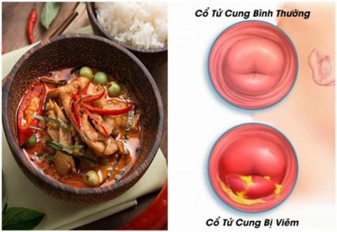 5 thực phẩm 'nuôi' khối u xơ lớn mỗi ngày, là mối nguy hại với tử cung