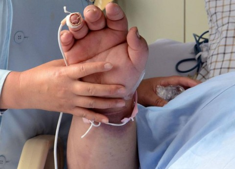 Dấu hiệu này xuất hiện trên bàn tay, người đàn ông phát hiện ung thư phổi