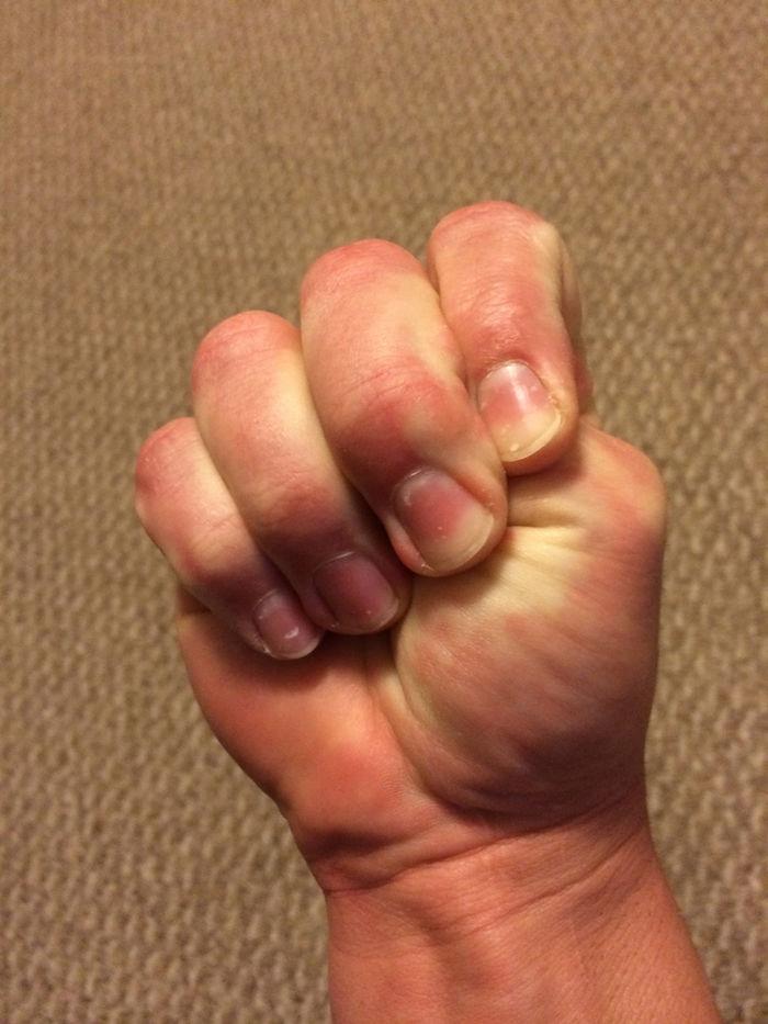 Mẹo đẩy lùi các cơn đau thường gặp của cơ thể mà không cần thuốc