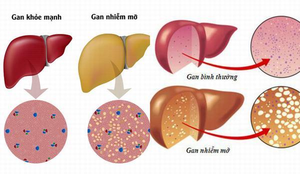 Mỡ máu cao gây ra 3 loại bệnh nguy hiểm,