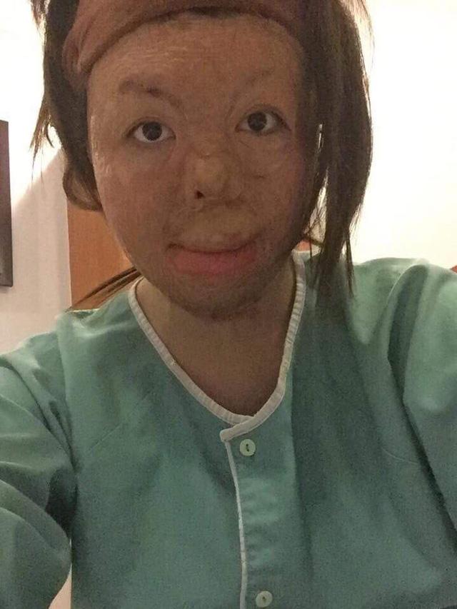 Nguyễn Thị Thùy Dung đã trải qua tất cả 11 cuộc phẫu thuật (ảnh nhân vật cung cấp)