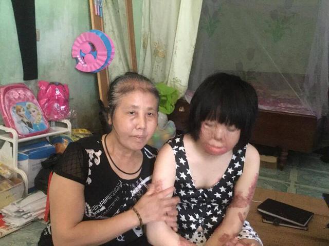 Nguyễn Thị Thùy Dung và mẹ đẻ. Ảnh: Ngọc Thi