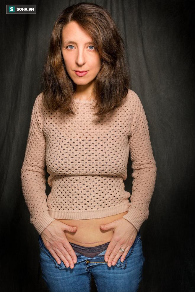 Câu chuyện đặc biệt của những bà mẹ sinh mổ với những vết sẹo dài: Mọi phụ nữ đều nên đọc!