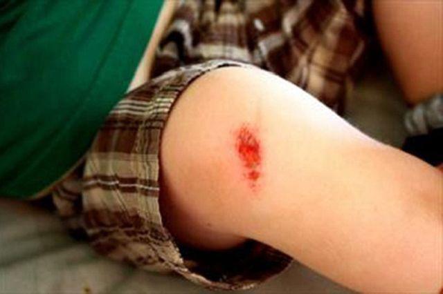 Chú ý các vết thương nhỏ ngoài da cũng cần phải xử lý kịp thời.