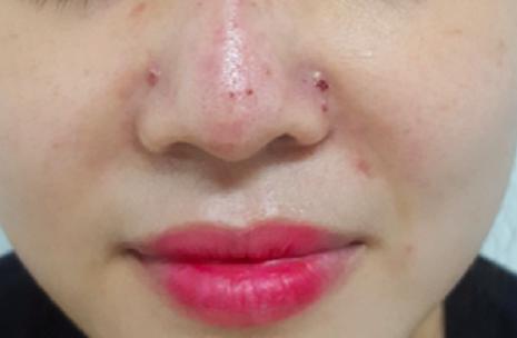 Hà Nội: Tiêm filler vùng mũi tại spa, một phụ nữ bị tắc mạch