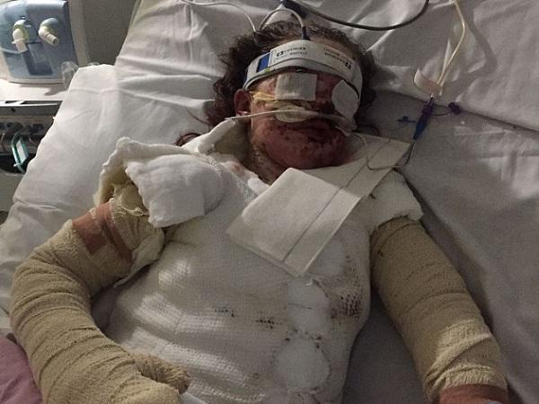Sau khi uống thuốc giảm đau cô bé 10 tuổi bị bỏng đến 65% cơ thể và mất trí