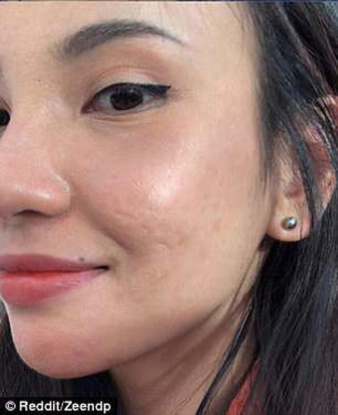 Cô gái người Việt lên cả báo nước ngoài vì trị khỏi mụn một cách