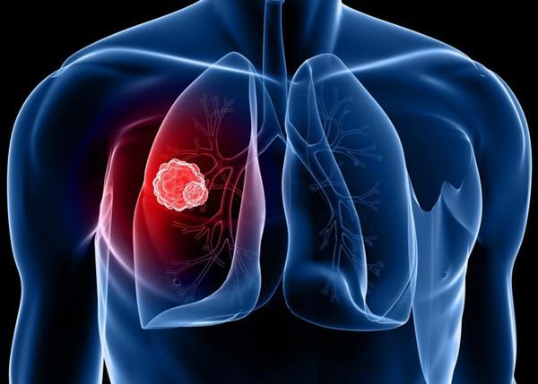 Người phụ nữ này bị ung thư phổi ở tuổi 31, nguyên nhân do chính thứ