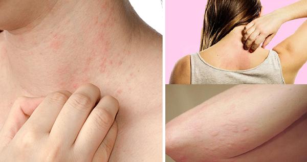 Ngứa da là dấu hiệu của nhiều bệnh nguy hiểm cần khám ngay