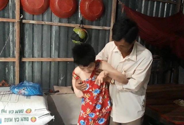Người cha khóc nghẹn kể chuyện con gái mắc bệnh bại não nghi bị hàng xóm hiếp dâm nhiều lần, 2 lần phải phá thai