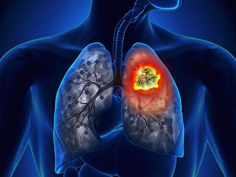 Ung thư phổi: 2 dấu hiệu nhận biết sớm nhất nhưng nhiều người hay bỏ qua